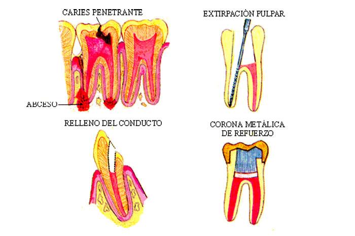 como-se-realiza-endodoncia-clinica-dental-quinteros-borgarello