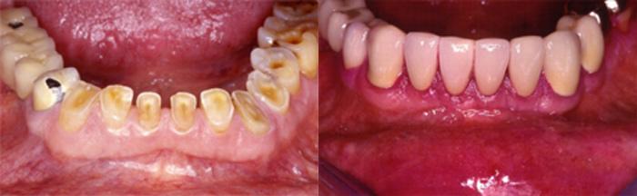 dientes-desgastados-clinica-dental-quinteros-borgarello