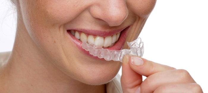 ortodoncia-para-adultos-clinica-dental-quinteros-borgarello