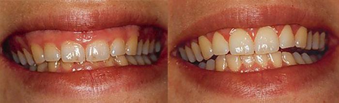 sonrisa-gingival-clinica-dental-quinteros-borgarello